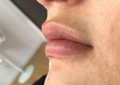 Resultados de rellenos de labios Dra Elisa Matehus (10)