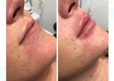 Resultados de rellenos de labios Dra Elisa Matehus (2)