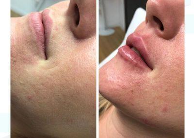 Resultados de rellenos de labios Dra Elisa Matehus (4)