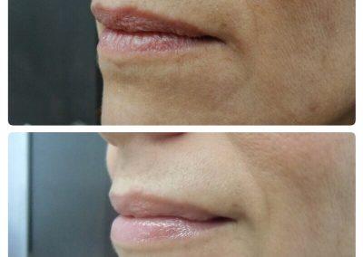 Resultados de rellenos de labios Dra Elisa Matehus (5)