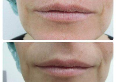 Resultados de rellenos de labios Dra Elisa Matehus (8)