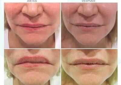 Resultados de rellenos de labios Dra Elisa Matehus (9)