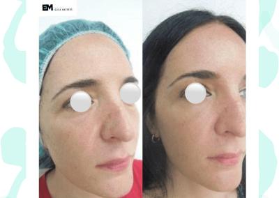 Resultados de tratamientos de ojeras. Caso 1
