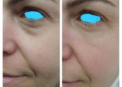 Resultados de tratamientos de ojeras. Caso 2