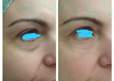Resultados de tratamientos de ojeras. Caso 3