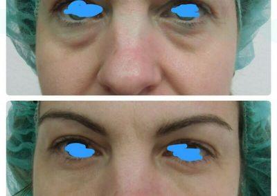 Resultados de tratamientos de ojeras. Caso 4