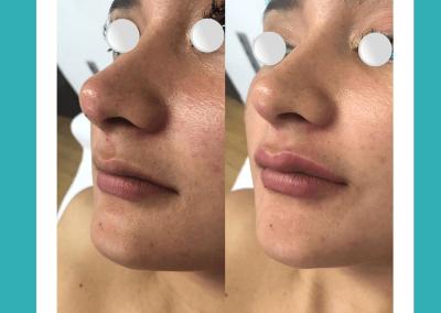 Resultados de rellenos de labios Dra Elisa Matehus (1)