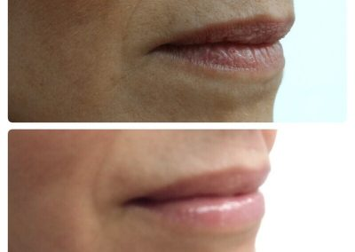 Resultados de rellenos de labios Dra Elisa Matehus (6)