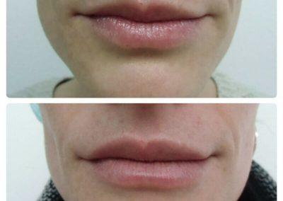 Resultados de rellenos de labios Dra Elisa Matehus (7)