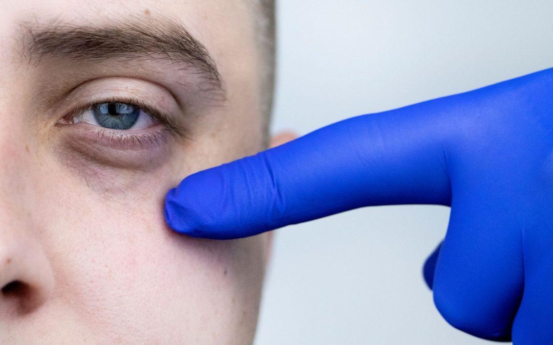 Tres cosas que debes saber sobre las ojeras