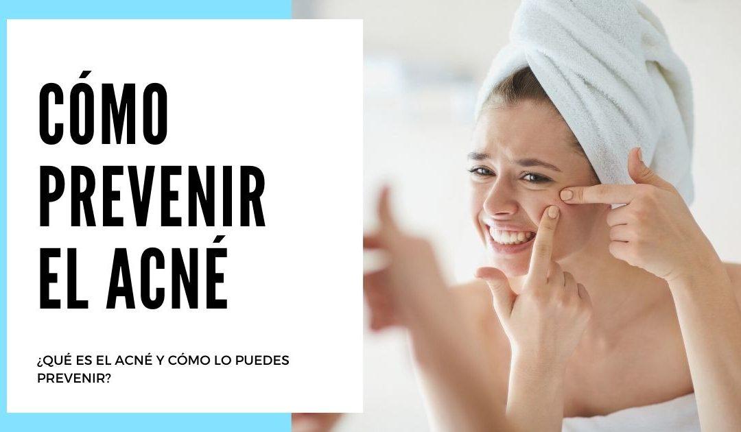 ¿Qué es el acné y cómo lo puedes prevenir?