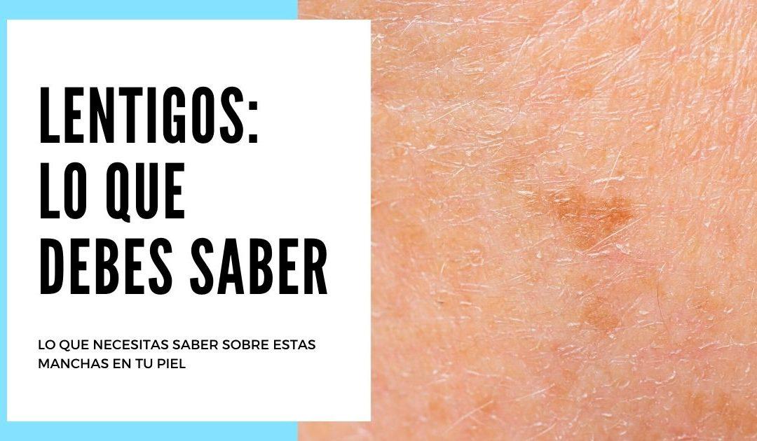 Lentigos: Todo lo que debes saber sobre estas manchas en tu piel
