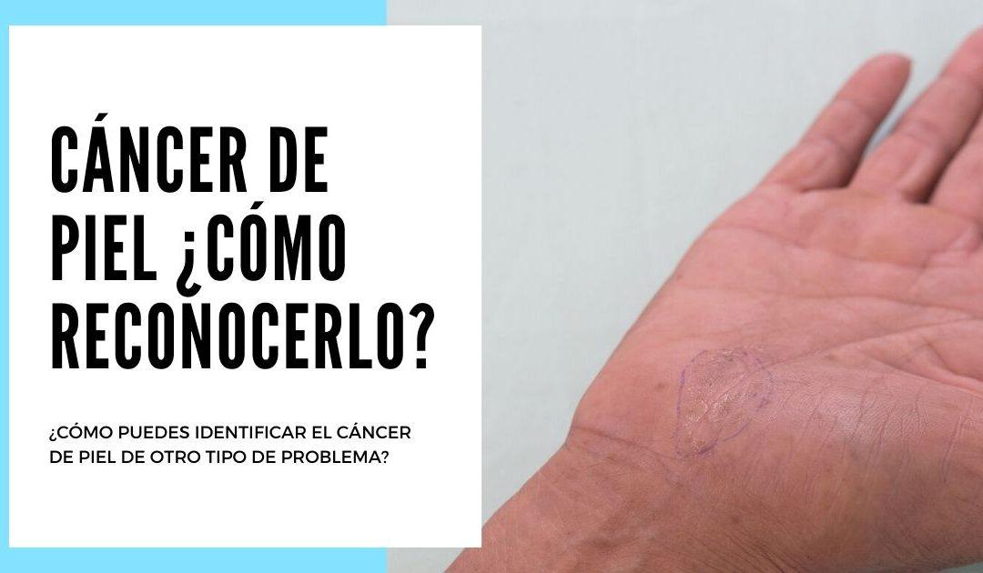 Principales signos y síntomas relacionados con el cáncer de piel. ¿Cuándo preocuparse y cuándo no?